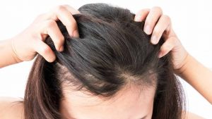 بهترین قرص ضد ریزش مو برای زنان