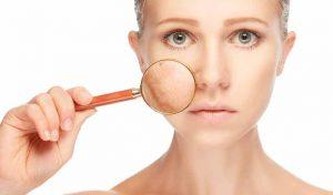 بهترین و سریع ترین روش برای از بین بردن لک صورت